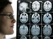 Kyla Nagel yang didiagnosis menderita kanker otak yang agresif, berdiri di sebelah hasil pemindaian otaknya.