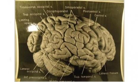 Tujuh Hal yang Bisa Membunuh Sel Otak (2)