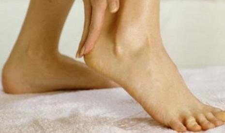 Gatal di kaki (ilustrasi)