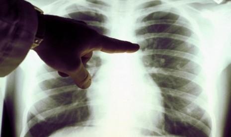 Image Penyebab kanker paru dan pengobatannya