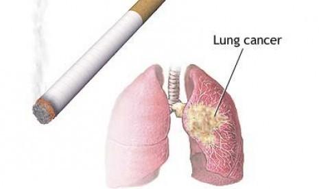 Image Pengobatan Kanker Paru paru cara alternatif