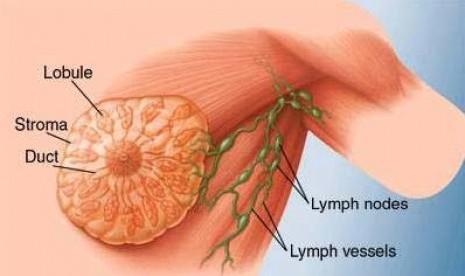 Kanker payudara (ilustrasi).