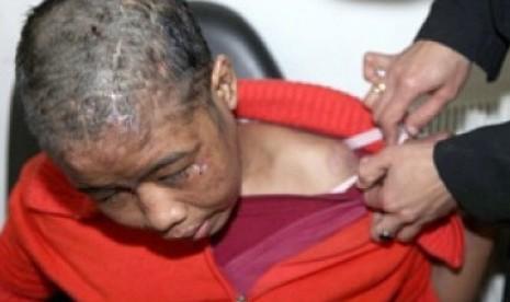 Kondisi Nurul Ahmad Lukman mengenaskan karena disiksa majikannya.