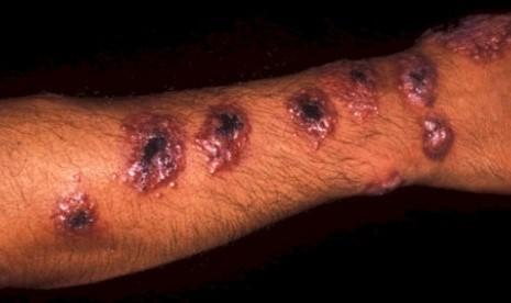 Leishmaniasis, penyakit mematikan yang kini menyerang para milisi ISIS.