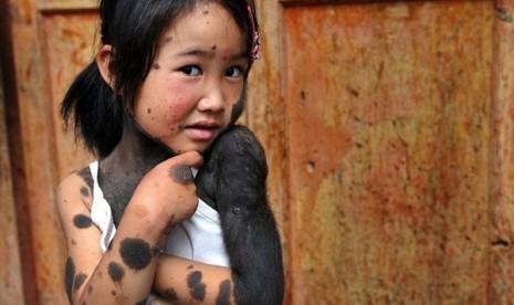 Duh, Gadis Kecil Ini Berbulu Tebal Seperti Monyet, Seperti Apa Wajahnya?