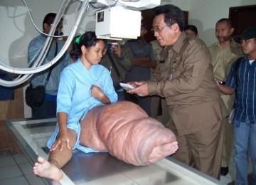 Penderita kaki gajah (ilustrasi)