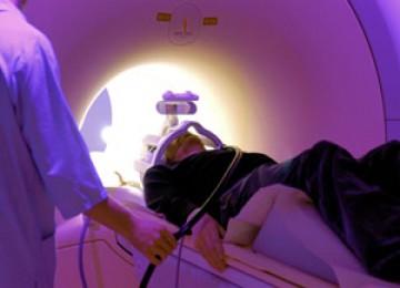 Scan otak untuk mengetahui kerusakan akibat stroke