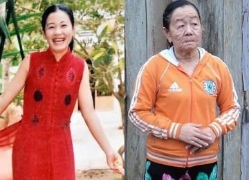 Kasus Langka...Wanita  23 Tahun Mendadak Jadi Nenek-Nenek dalam Waktu Singkat