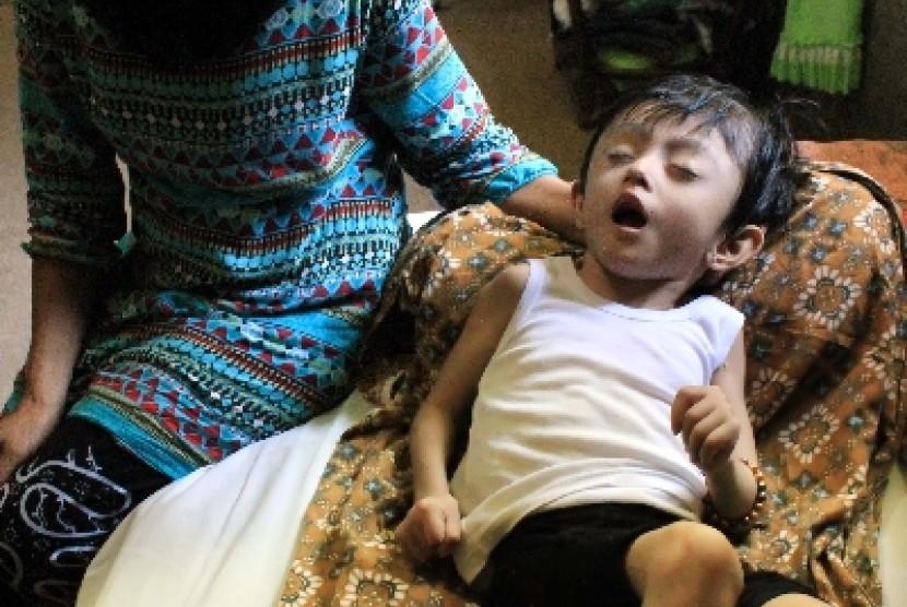 Anak penderita gizi buruk (ilustrasi).