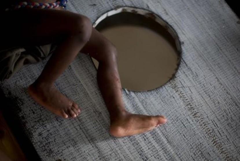 Anak yang dirawat karena penyakit kolera (ilustrasi)
