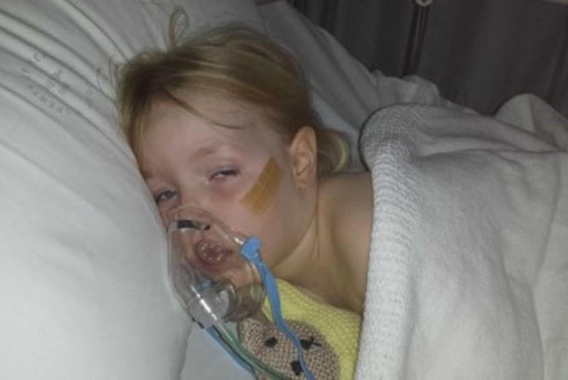 Claire, salah seorang penderita asma
