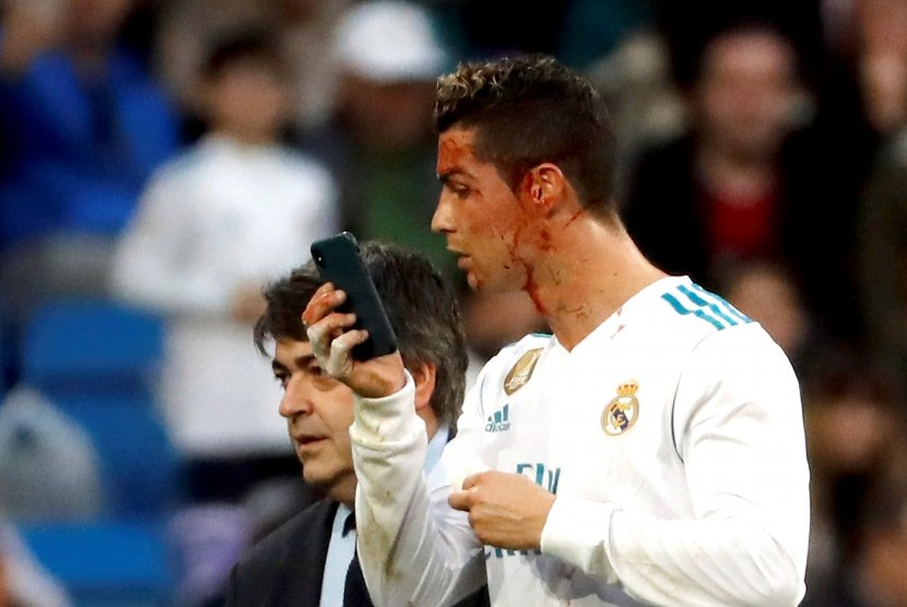 Cristiano Ronaldo menggunakan telepon selular untuk mengecek luka di wajahnya.