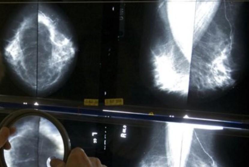 Permalink to Kanker Payudara tidak Hanya Serang Perempuan