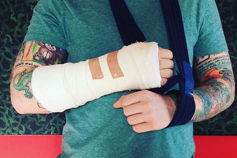 Permalink to Ed Sheeran Kecelakaan Saat Gowes Sepeda