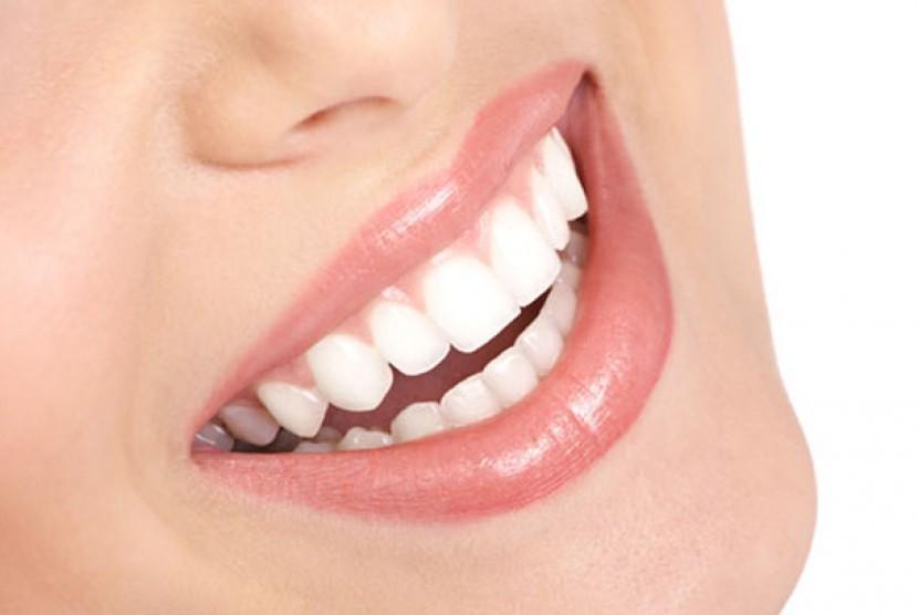 Gigi putih. (Ilustrasi)