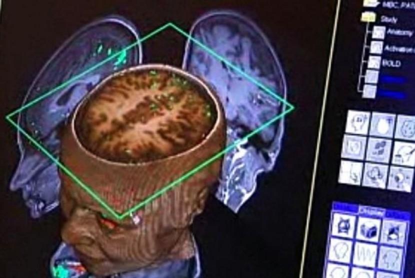 Ilmuwan dari Australian National University (ANU) berhasil menciptakan apa yang mereka sebut 'otak dalam sebuah chip', yang menggunakan semi konduktor untuk memandu pertumbuhan jaringan saraf menjadi koneksi yang bisa diprediksi.