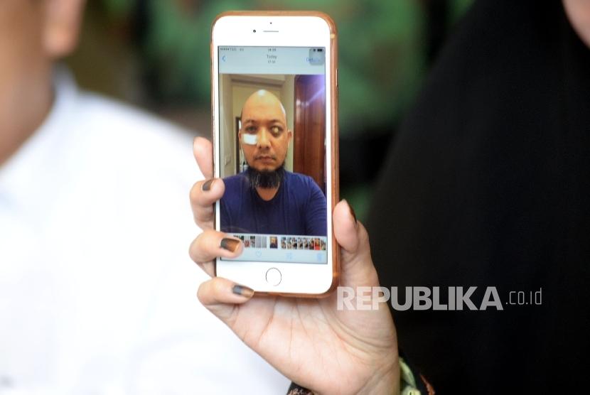 Novel Baswedan Harus Jalani Operasi Mata Kiri