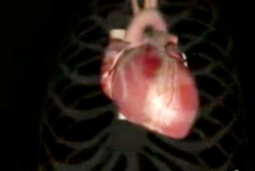 Lima Puluh Persen Penderita Jantung Mewarisi dari Keluarga