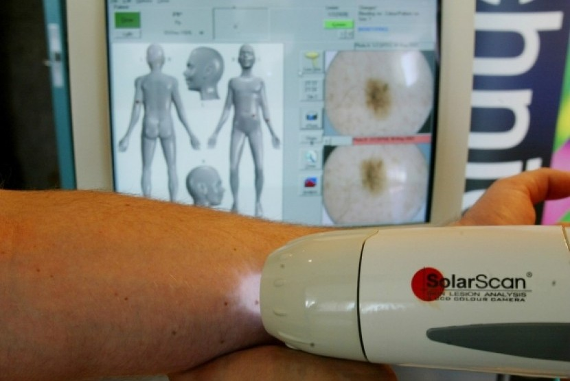 laser Doppler untuk mendeteksi kanker kulit