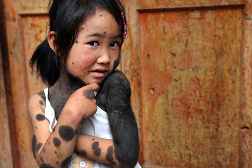 Liu Jiangli, penderita kelainan kulit tubuh