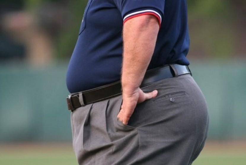 Obesitas (Ilustrasi)
