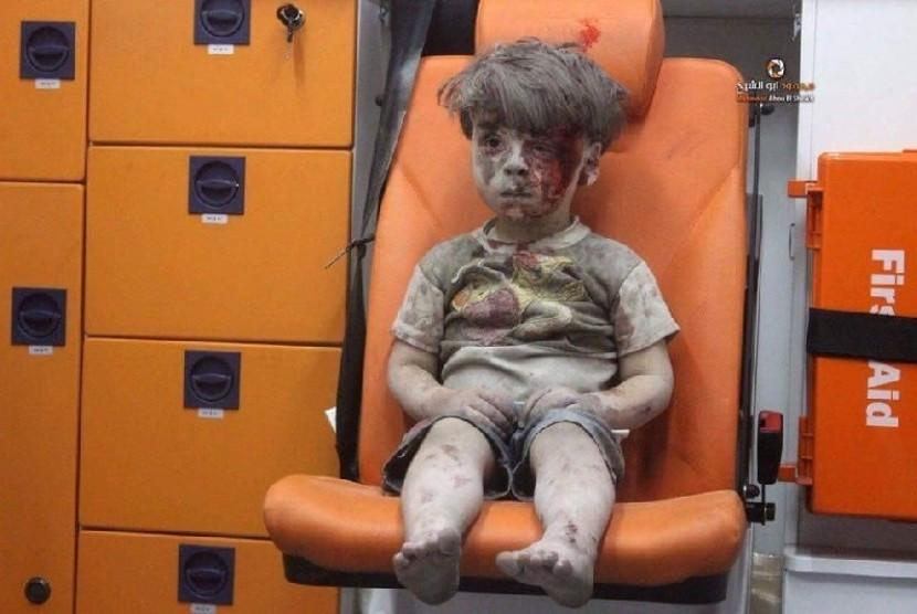 Omran Dagnesh, bocah yang selamat dari serangan udara di Suriah.