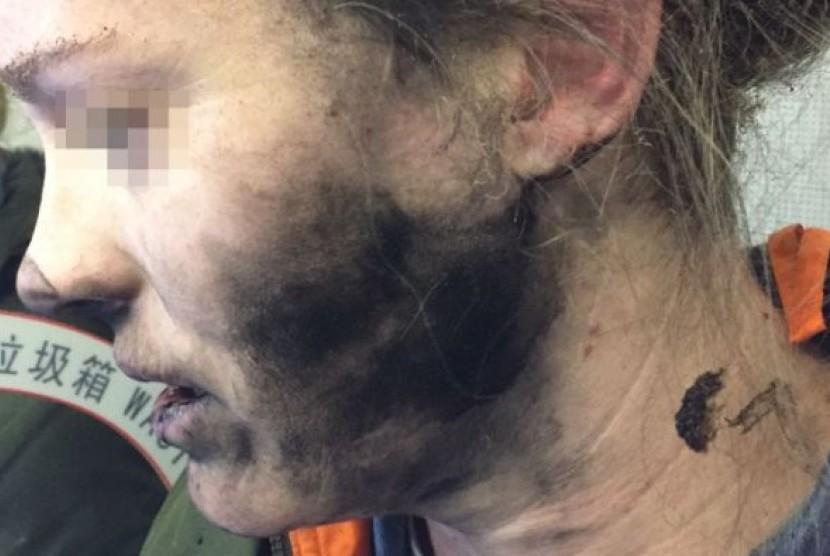 Penumpang ini mengalami luka bakar setelah headphonenya terbakar dalam pesawat.