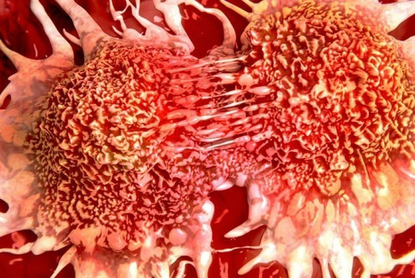 Sel kanker. Ilustrasi