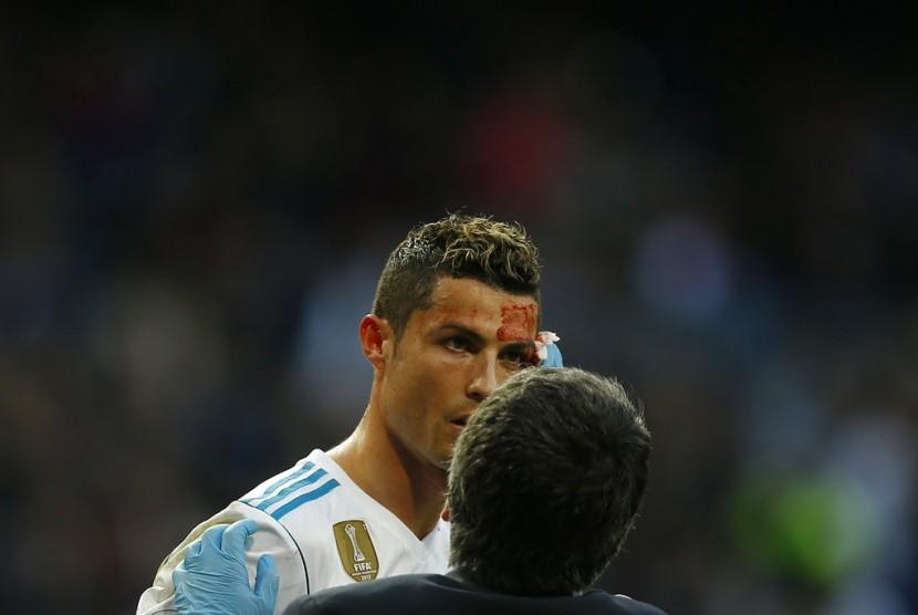 Striker Real Madrid, Cristiano Ronaldo terlihat mengalami pendarahan di kepalanya pada laga La Liga lawan Deportivo La Coruna, di Santiago Bernabeu, Ahad (21/1).