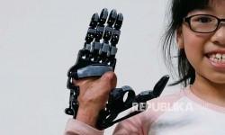 Angel Peng, 8, kehilangan sebagian telapak tangan dan jarinya saat berusia 9 bulan akibat kecelakaan di Taoyuan, Taiwan,