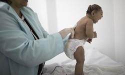 Lara berusia kurang dari tiga bulan terlahir dengan mikrosefalia yang terkena wabah virus zika di Brasil.