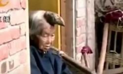 Liang Xiuzhen, nenek yang memiliki tanduk besar di kepalanya