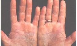 Psoriasis of palms (illustration)
