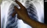 Ilustrasi Tuberkulosis.