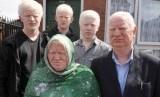 Keluarga Parvez, semua berkulit albino