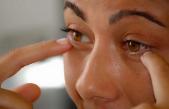 Tanda-Tanda Kolesterol Tinggi di Sekitar Mata