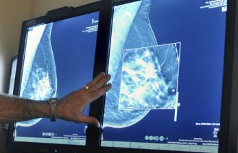 4 Cara Deteksi Dini Kanker Payudara Secara Mandiri
