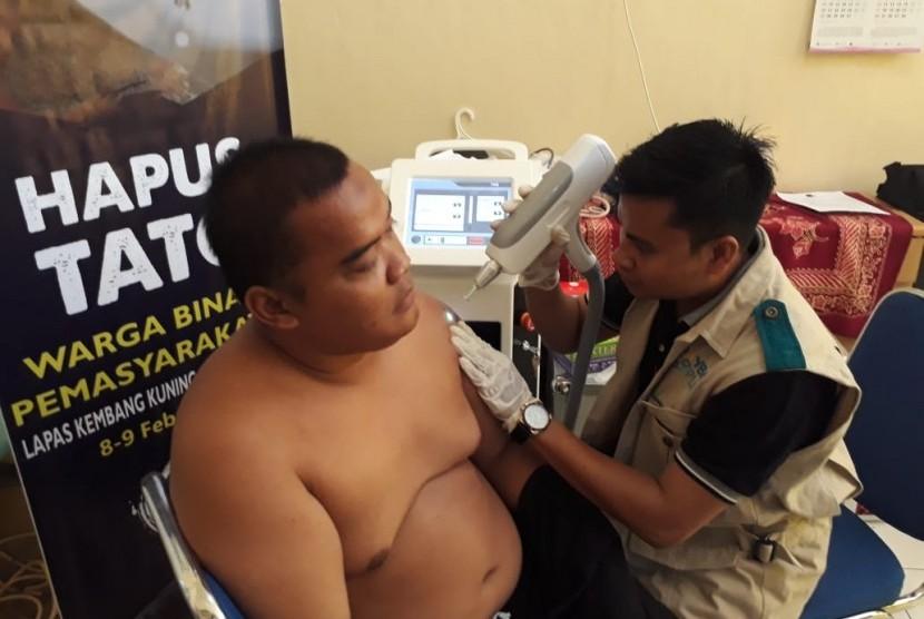 Narapidana di Lapas Kembangkuning, Nusa Kambangan, Kabupaten Cilacap, Jawa Tengah sedang menjalani proses penghapusan tato oleh IMS yang didukung YBM PLN, Jumat (8/2).