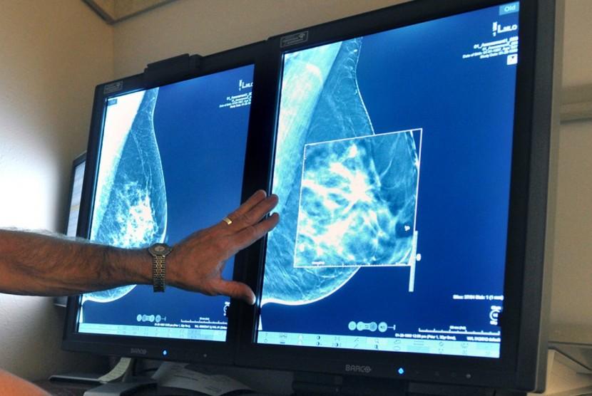 Teknologi mammografi dapat mendeteksi dini kanker payudara