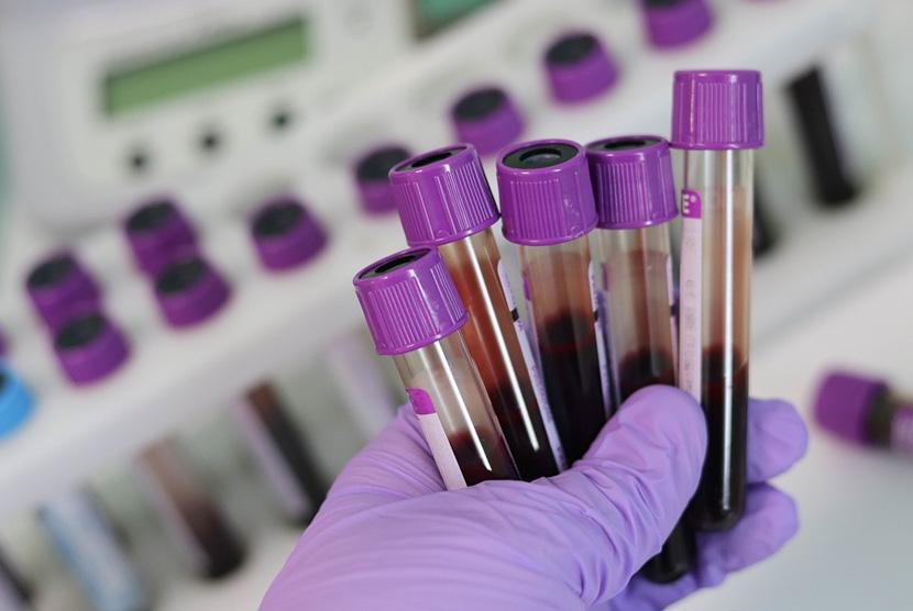 Cek darah laboratorium. Ilustrasi