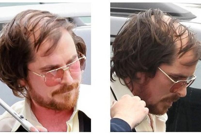 Christian Bale dalam penampilan terbarunya untuk karakter Melvin Weinberg yang ia perankan dalam film terbarunya.