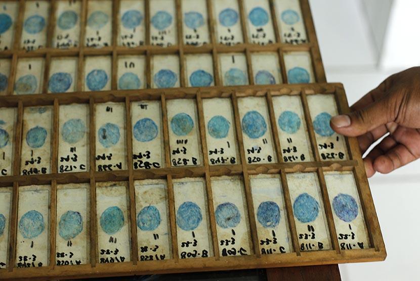 Contoh sampel sputun yang dikumpulkan dari pasien penderita tuberculosis (TB).