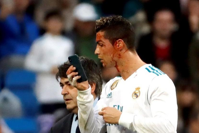 Cristiano Ronaldo memeriksa luka di wajahnya dengan telepon selular.