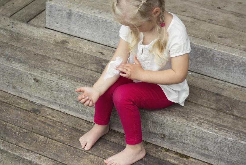 Dermatitis atopic biasa diderit anak, khususnya yang berumur kurang dari lima tahun.