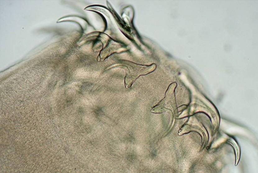 Ilustrasi cacing pita.