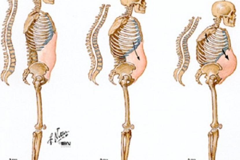 Ilustrasi osteoporosis.