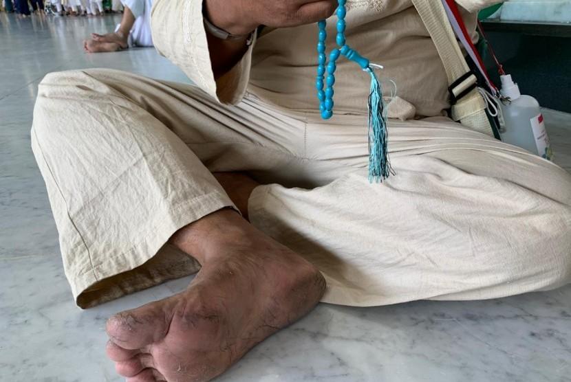 Jamaah haji Indonesia yang kakinya melepuh karena tak menggunakan alas kaki ketika keluar Masjid Al Haram.