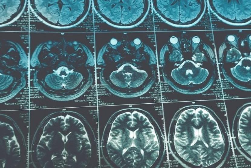 Kanker Otak. Ilustrasi