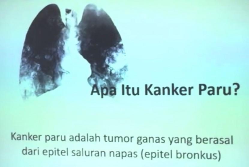 Kanker paru (ilustrasi)