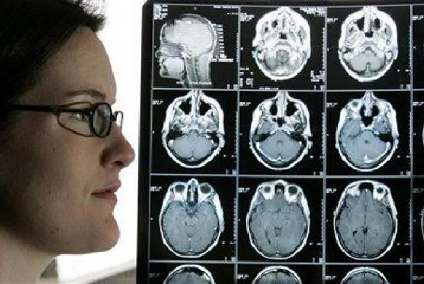 Begini Pengobatan Kanker Otak   Republika Online